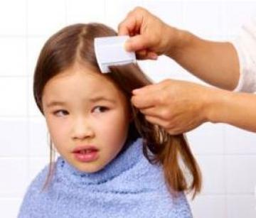 Treating Lice